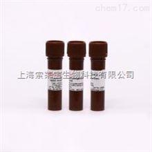 Solarbio 现货 L-Lactic Dehydrogenase from rabbit mus