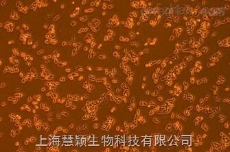 HaCaT细胞,人永生化表皮细胞形态
