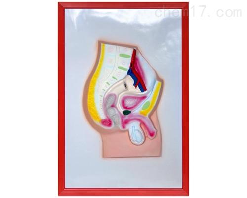 男性盆腔矢状切浮雕模型