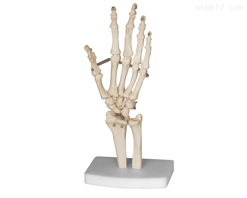 手骨  解剖模型