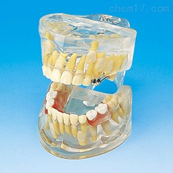 透明乳牙发育模型 牙医教学