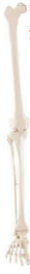 下肢骨  教学模型