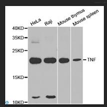 STJ25882Anti-TNF Antibody