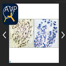 STJ93448Anti-GSK beta antibody