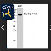 STJ90529Anti-Phospho-IL-2 beta (Y364) antibody