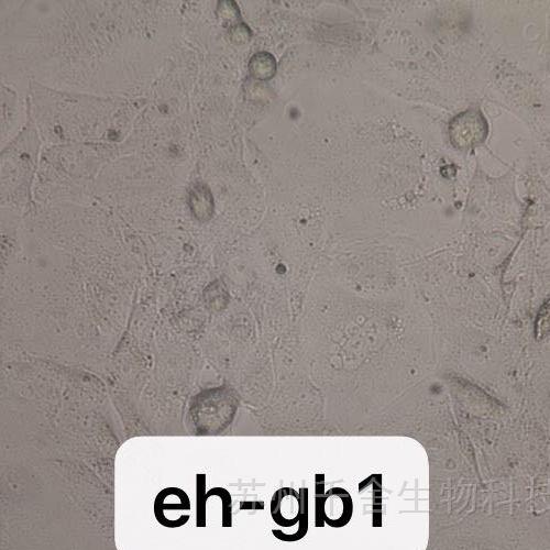 EH-GB1人胆囊癌细胞