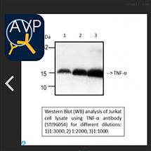 Anti-TNF-alpha antibody--STJ96054