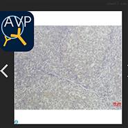 Anti-TNF alpha antibody