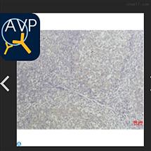 Anti-TNF alpha antibody-STJ97493