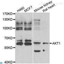 Anti-AKT1 antibody