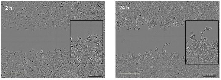 划痕实验的细胞侵袭和细胞迁移具有类似的实验