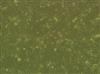 人急性淋巴细胞白血病细胞T淋巴细胞