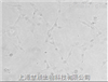人肾癌细胞系