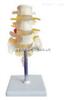 SMD01524腰骶椎与神经模型(3个腰椎) 教学模型